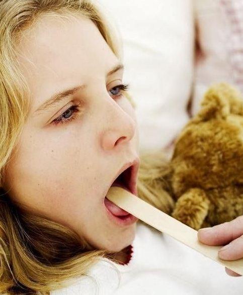 ангина ребенок лечат: