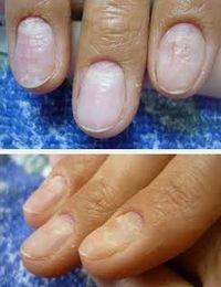 определение болезни по ногтям