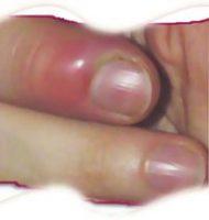 Как лечить в домашних условиях ногтевой панариций
