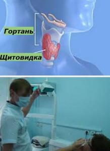 щитовидка лечение