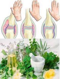 лечение артрита народными методами