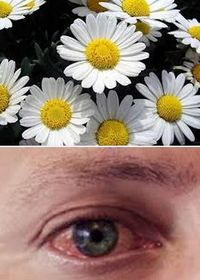как снять покраснение глаз