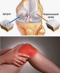 как лечить остеоартроз