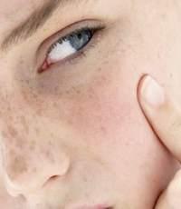 Обезвоживание кожи – чем вызвано?