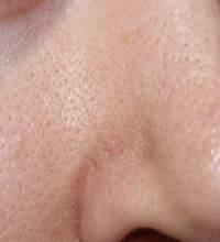 Поры на лице: эффективная косметическая помощь