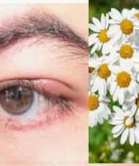 Ячмень на глазу и халязион, народные рецепты