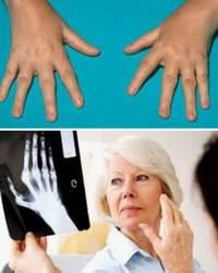 Полиартрит – тяжелая, но излечимая болезнь
